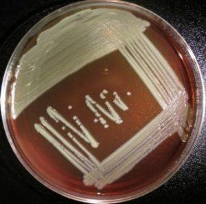 Photo 1: Elizabethkingia anophelis growing on a blood agar plate. Photo courtesy of the CDC and Prevention Special Bacteriology Reference Lab.