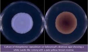 Histoplasma capsulatum culture in SDA Source:http://www.mycology.adelaide.edu.au/