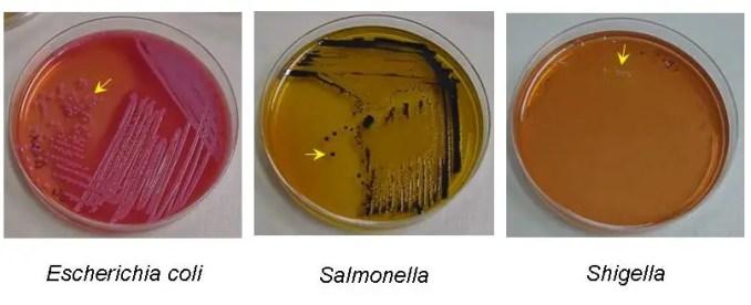 E coli Shigella Salmonella