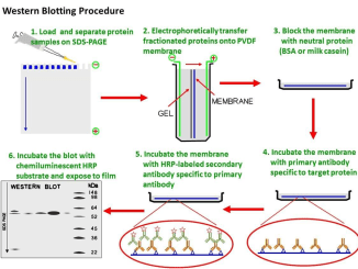 Western Blot Technique Principle Procedures And Uses