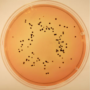 Colony of Salmonella (with black centers) in Deoxycholate Citrate Agar