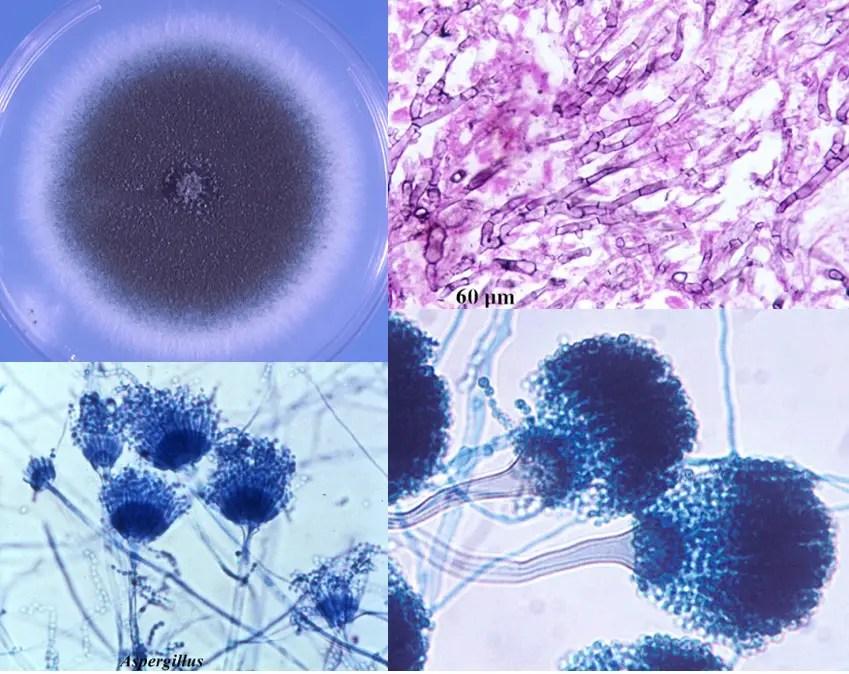 Aspergillus fumigatus: Characteristics, Pathogenesis and ...