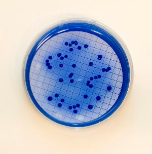 Fecal coliform colonies in mFC agar plates