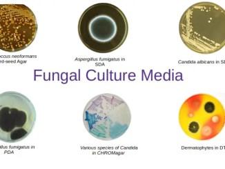 Common Fungal Culture Media