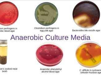 Anaerobic culture media