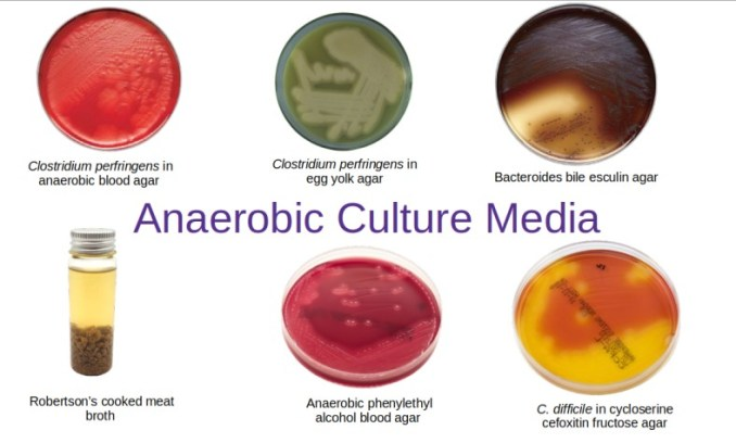 Various types of anaerobic culture media used in diagnostic bacteriology laboratory