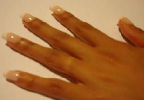 Diffe Conditions Of The Fingernails