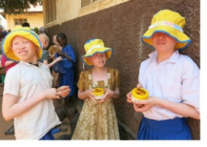 tanzania albino children 2