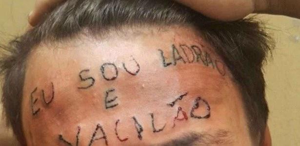 ladrao e vacilao - Vaquinha rendeu R$19.882,67 para remover frase na testa de rapaz