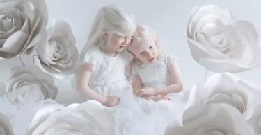 meninas albinas - Há 100 anos nascia o homem mais alto do mundo de todos os tempos