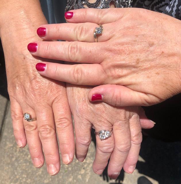 Rings that Bind