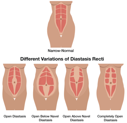 healing abdominal muscles after pregnancy | midwifery traditions, Human Body