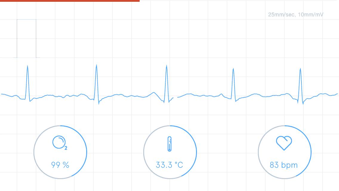 Azoi Kito Bio Sensing Health Monitor Review