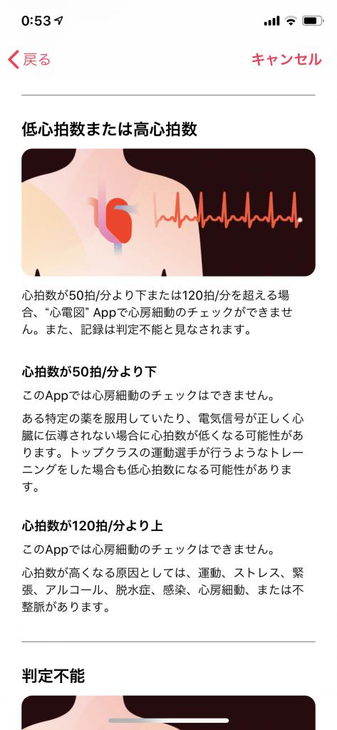 Apple Watch 心電図