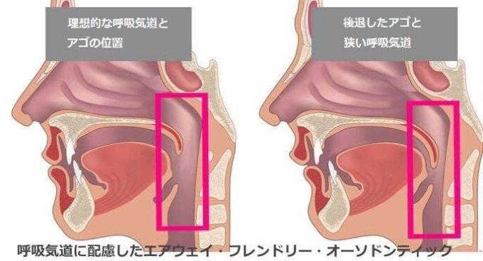 いびきをかく人の理想的な顎の位置
