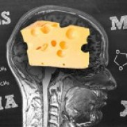 swiss-cheese-brain-150x150