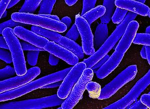 csm_e__coli_bacteria_994e9e0303