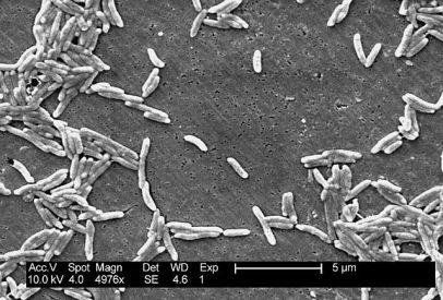 Campylobacter-Bakterien (Quelle: Public domain)