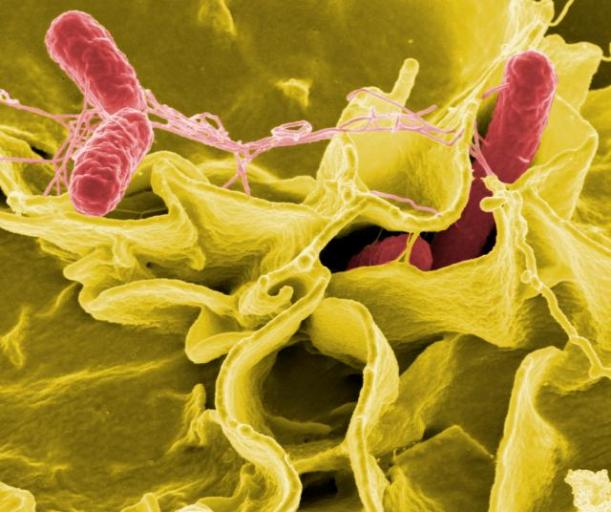 salmonella_bacteria_5613656967_niaid_ccby2-0