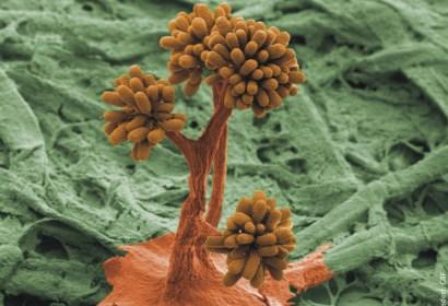 Myxobakterien (Quelle: HZI Braunschweig)