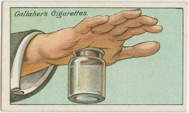 How to remove splinters