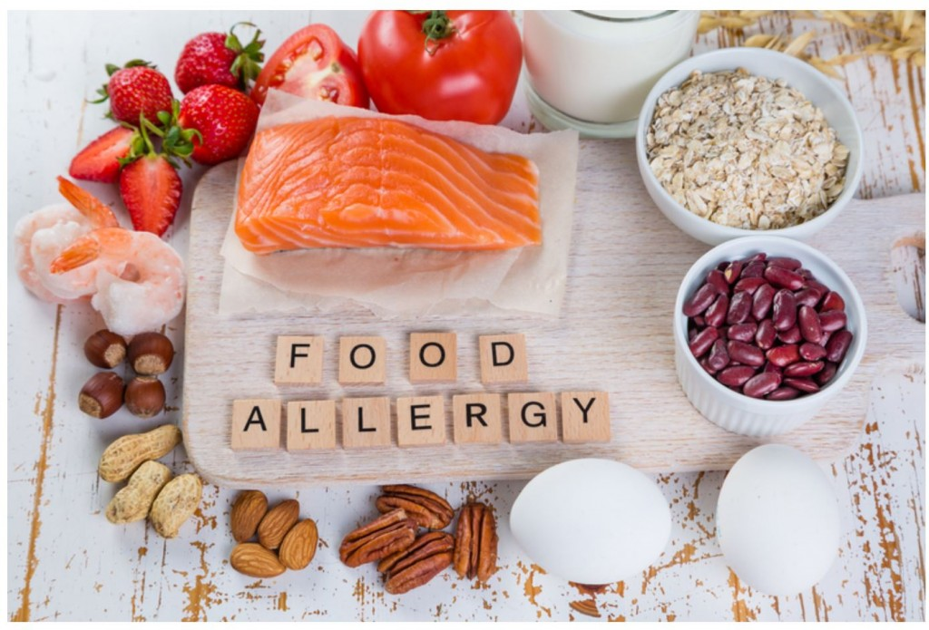 Is a Food Allergy Causing You Inflammation? - Mile High Spine & Pain Center