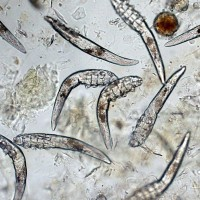 Demodex Mites