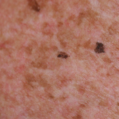 Lentigines or brown spots from sun exposure