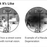 Local MDs answer questions about sight-threatening macular degeneration