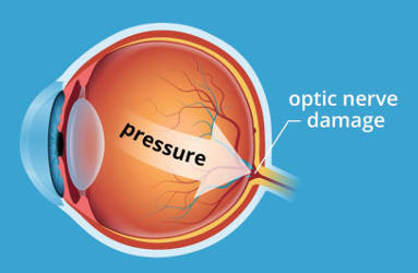 eye-pressue-optic-nerve-damage-diagram