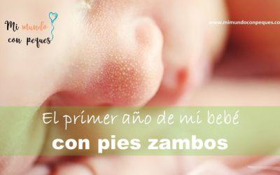 El primer año de mi bebé con pies zambos