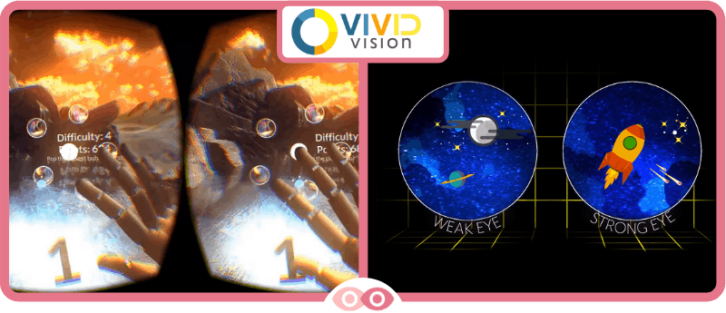 Nuevas Tecnologías para la Terapia Visual - Vivid Vision - mimundovisual.com