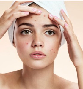 THE BEST FIVE CLEANSERS FOR ACNE PRONE SKIN