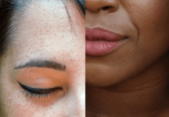 Effect of Menstrual Cycle and Hormones on the Skin