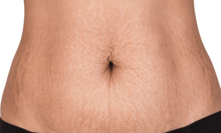 TOP 10 CREAMS FOR OLD STRETCH MARKS