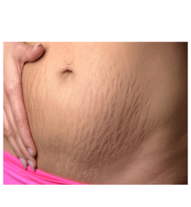 BEST SERUMS FOR STRETCH MARKS