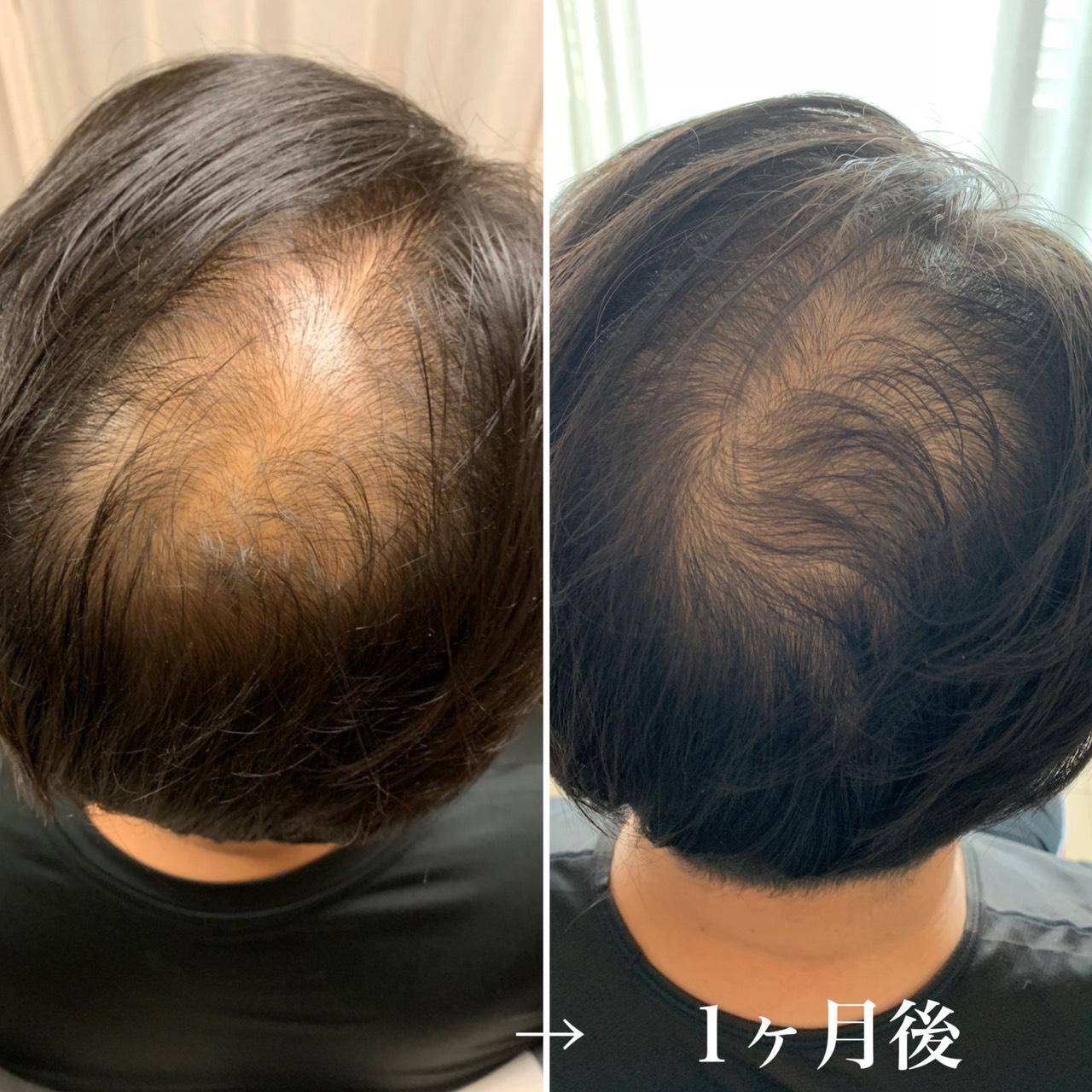 強髪スタ-トから1ヶ月後ビフォーアフター
