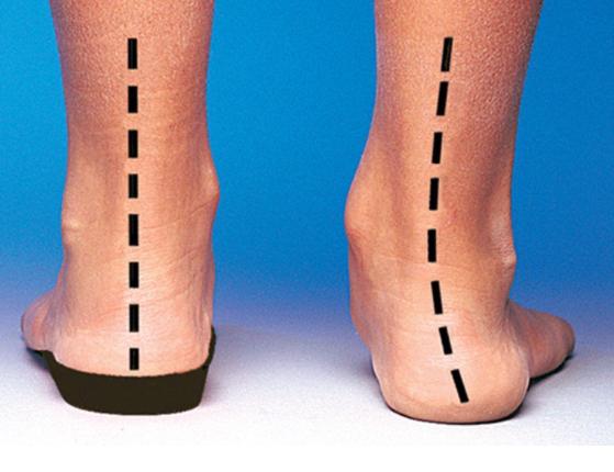 ultraboost flat feet