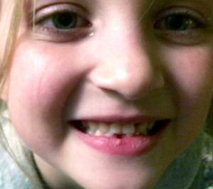 Six year old girl close up of first lost tooth.
