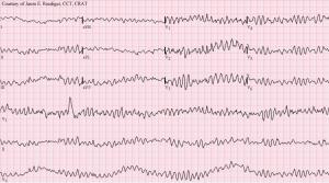 ventricular fibrilation