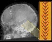 epilepsy_coherence.jpg
