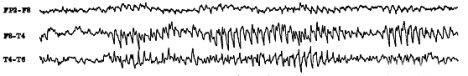 epilepsy_eeg_trace.jpg