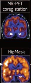 hipmask.jpg