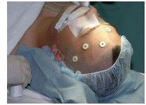 tumour_surgery.jpg