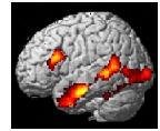 fMRI-Mini.jpg