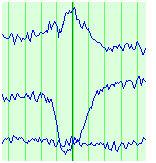 slow_wave_trace.jpg