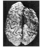 Ruth Wilder postmortem brain