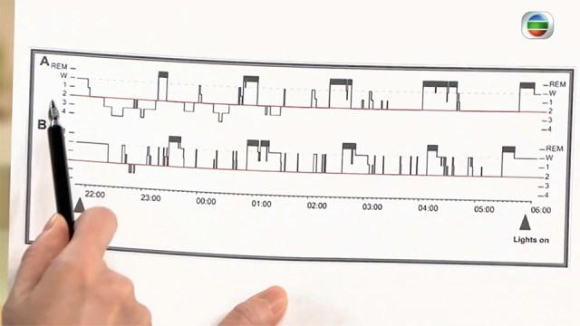 陳蔓蕾精神科醫生專科診所 - TVB-快樂長門人 - 睡眠質素與情緒健康 - 深淺層睡眠圖表