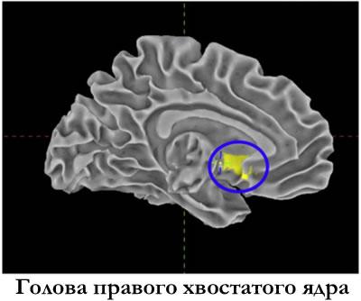 Голова правого хвостатого ядра