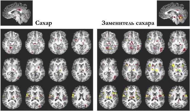 Активация регионов мозгав ответ на сахар и сахарин